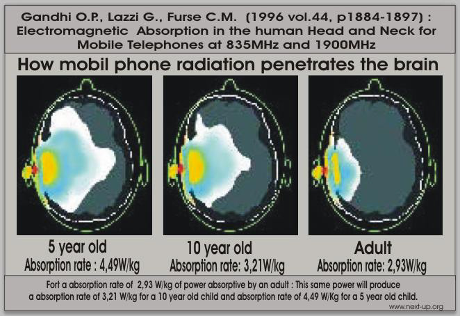 Mobile phone radiation penetration in brain by age